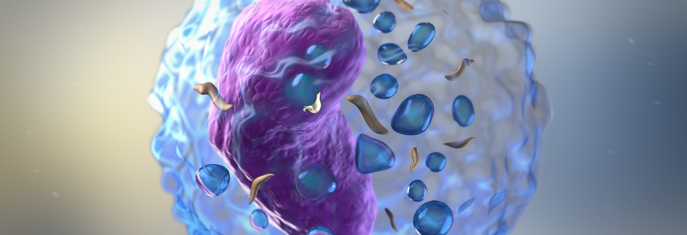 Myeloma Therapies Advancing Rapidly, Says Expert at Sloan Kettering