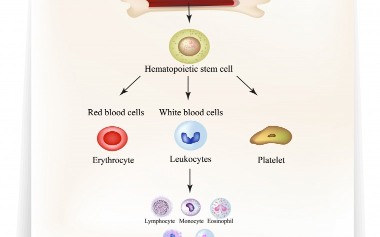 stem cell transplant therapy