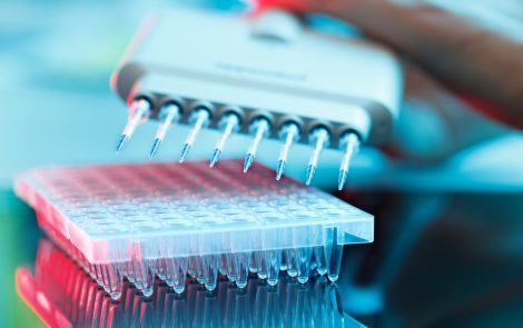 Multiple Myeloma Research Foundation Is Planning $15 Million Immunotherapy Initiative