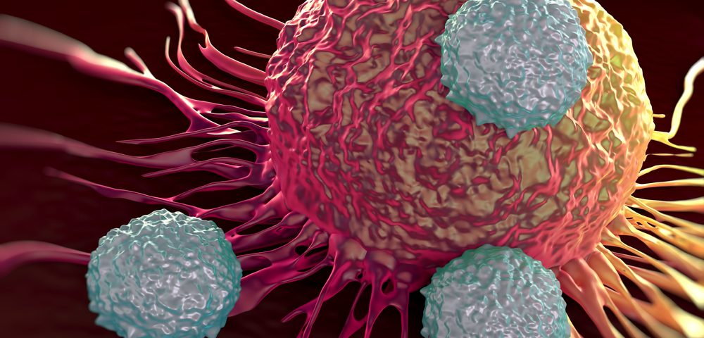 Autolus Advances New Myeloma CAR T-cell Therapy in Clinical Trial